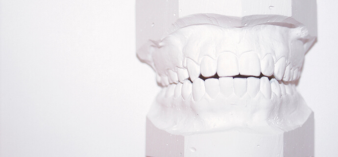 wax model of teeth