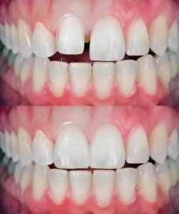 dentist in Indianapolis