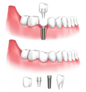 What are dental implants in Indianapolis? How are they placed, and how do you care for them? Find out from Drs. Mark Farthing and Amin Tepner.