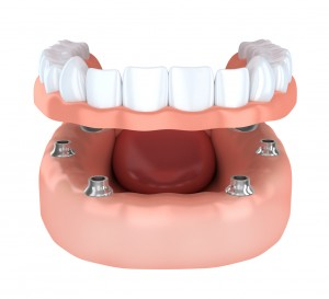 Wondering how implant-retained dentures from your trusted dentist in Indianapolis work? Learn more about this innovative option from our team.