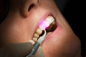 Dental light applied to a patient's teeth
