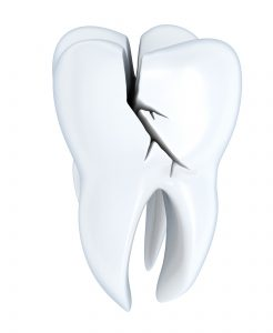 3D model of a fractured tooth