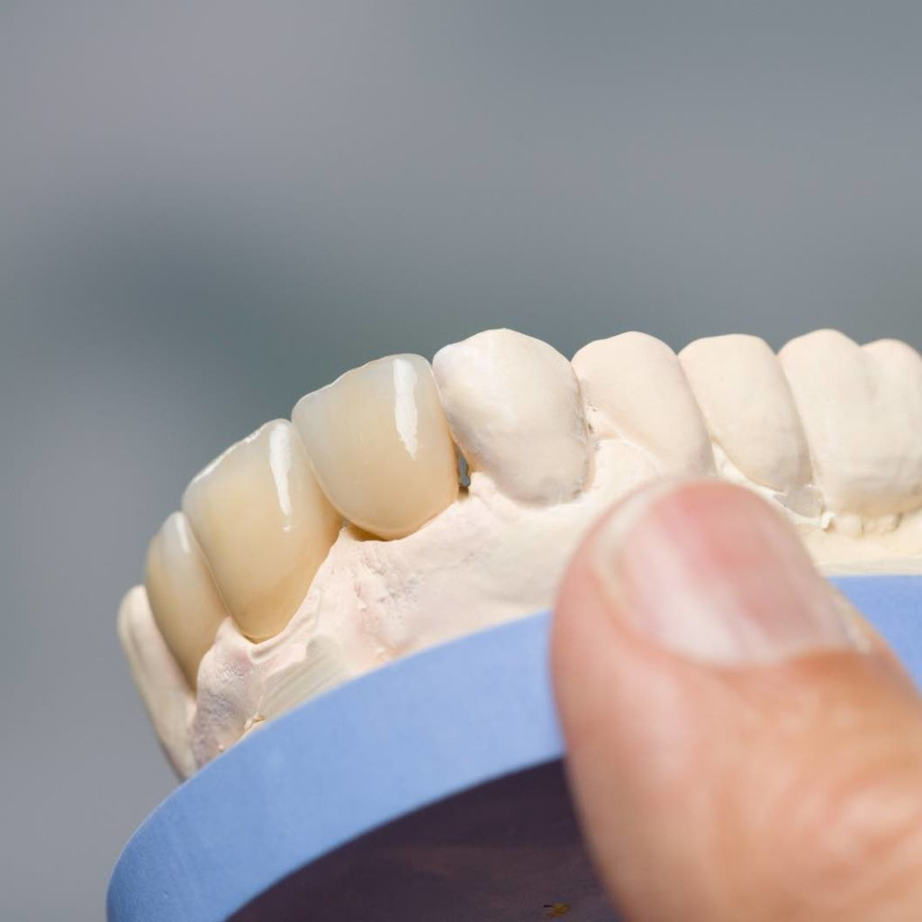 Dental wax-up