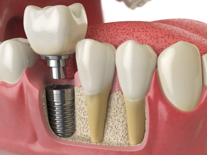dental implant in Indianapolis replacing missing back tooth
